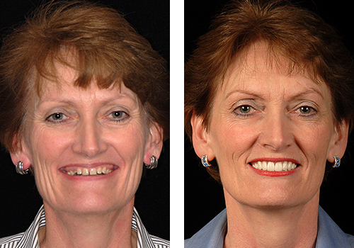 Before And After Biorejuvenation Cases The Stewart Center